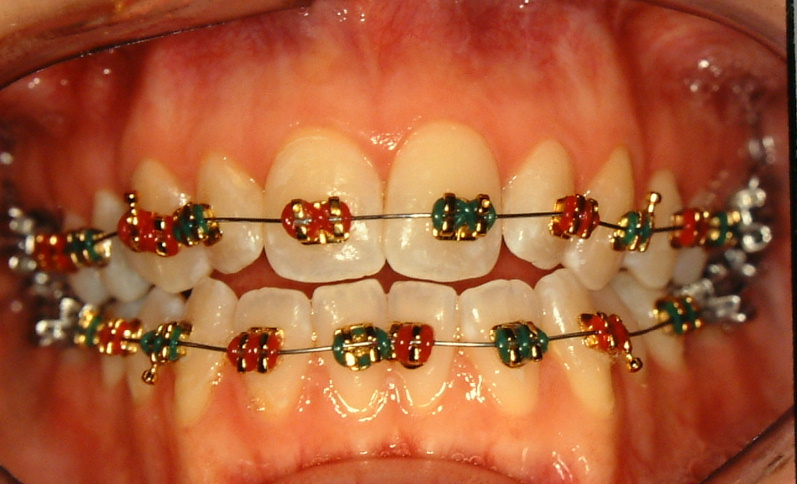 Winchester Clear Braces And Straight Teeth Strasburg